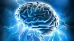 brain_prestige